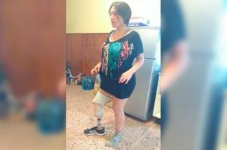 Entro al quirofano y salio sin una pierna